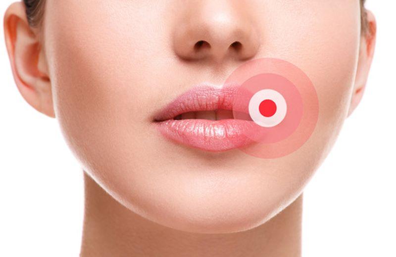 herpes labialis shendeti buze